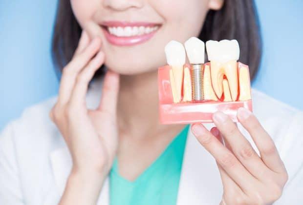 Comment limiter le jaunissement des dents?